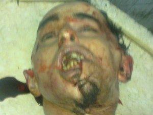 Khaled-nach-der-Folter1